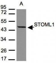 NBP1-32227 - STOML1