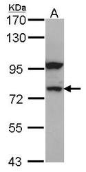 NBP1-32239 - Catenin beta-1