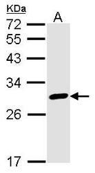NBP1-32244 - Calretinin