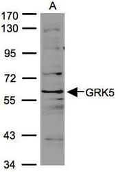 NBP1-32256 - GPRK5