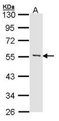 NBP1-32268 - MEF2A