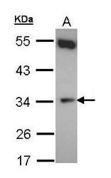 NBP1-32276 - CYB5R1
