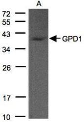 NBP1-32279 - GPD1L