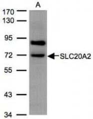 NBP1-32285 - SLC20A2 / PIT2