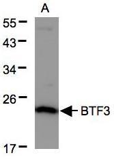 NBP1-32292 - BTF3