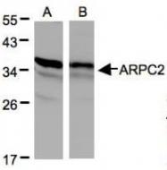 NBP1-32297 - ARPC2 / ARC34