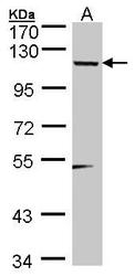 NBP1-32300 - SDCCAG33 / TSHZ1
