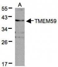 NBP1-32303 - TMEM59