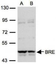 NBP1-32304 - BRE / BRCC45
