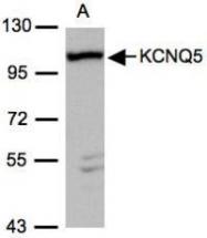 NBP1-32309 - KCNQ5