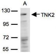 NBP1-32311 - TNK2 / ACK1