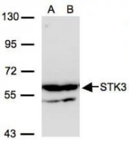 NBP1-32313 - STK3
