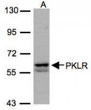 NBP1-32314 - PKLR