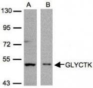 NBP1-32317 - Glycerate kinase