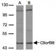 NBP1-32319 - C9orf98