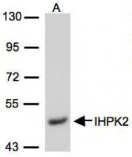 NBP1-32322 - InsP6 kinase 2 / IP6K2