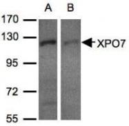 NBP1-32350 - XPO7 / Exportin-7