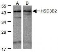 NBP1-32353 - 3-beta HSD2 / HSD3B2
