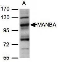 NBP1-32355 - Beta-Mannosidase