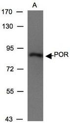 NBP1-32364 - Cytochrome P450 Reductase