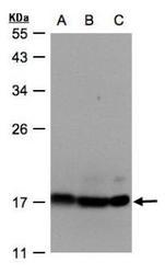 NBP1-32365 - ATP5D