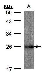 NBP1-32367 - UQCRFS1 (Complex III subunit Rieske)