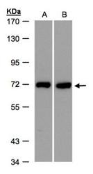 NBP1-32380 - Plastin 3 / PLS3