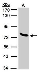 NBP1-32382 - ZNF45