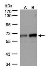 NBP1-32393 - MPP2