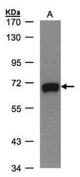 NBP1-32394 - GALNT2