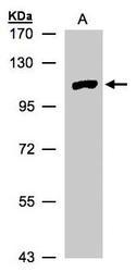 NBP1-32402 - MTMR4