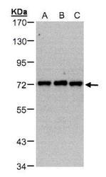 NBP1-32408 - PIP5K1C
