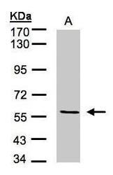 NBP1-32409 - CD105 / Endoglin