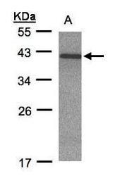 NBP1-32415 - CCRK / CDCH