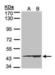 NBP1-32418 - CMAS