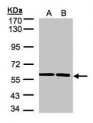 NBP1-32421 - SR-alpha / SRPR