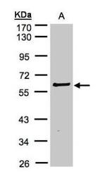 NBP1-32424 - RIPK2