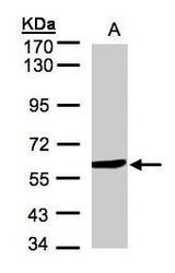 NBP1-32426 - Amine Oxidase B