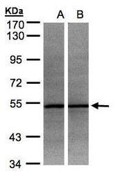 NBP1-32429 - ADPGK
