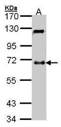 NBP1-32432 - UCKL1