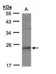 NBP1-32435 - RAP2C