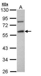 NBP1-32436 - Fibrinogen gamma chain
