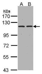 NBP1-32442 - CD249 / Glutamyl aminopeptidase