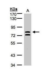 NBP1-32447 - L3MBTL1