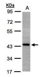 NBP1-32451 - ST3GAL2