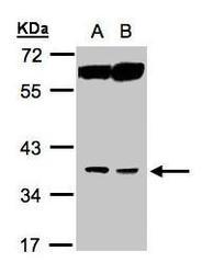 NBP1-32452 - ACOT8