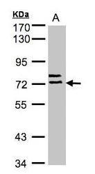 NBP1-32458 - Albumin
