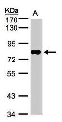 NBP1-32461 - TAF15