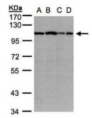 NBP1-32462 - Alpha-actinin-2 / ACTN2