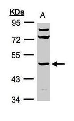 NBP1-32465 - HYAL1 / Hyaluronidase-1